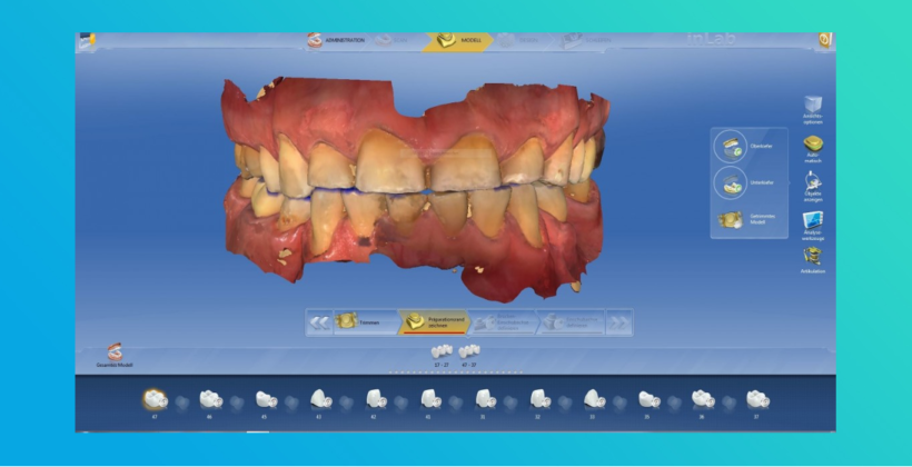 CEREC Design-Service